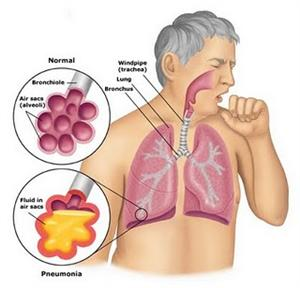 penyakit-radang-paru-paru-basah-pneumonia