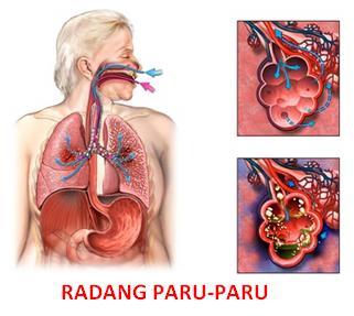 radang-paru-paru